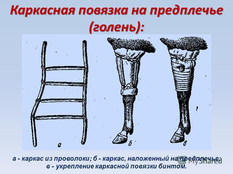 Каркасная повязка на предплечье (голень): а - каркас из проволоки; б - каркас, наложенный на предплечье; в - укрепление каркасной повязки бинтом.