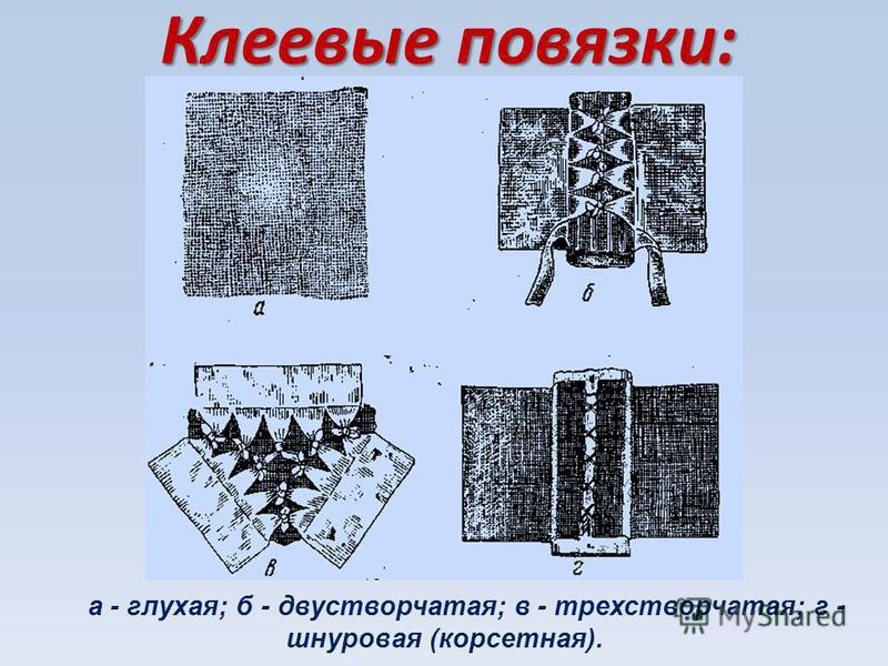 Клеевые повязки: а - глухая; б - двустворчатая; в - трехстворчатая; г - шнуровая (корсетная).
