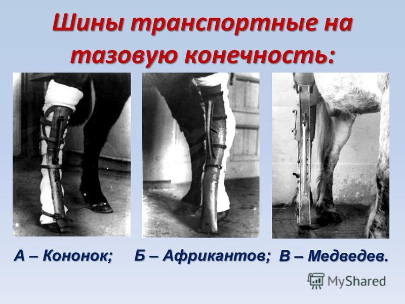 Шины транспортные на тазовую конечность: А – Кононок; Б – Африкантов; В – Медведев.