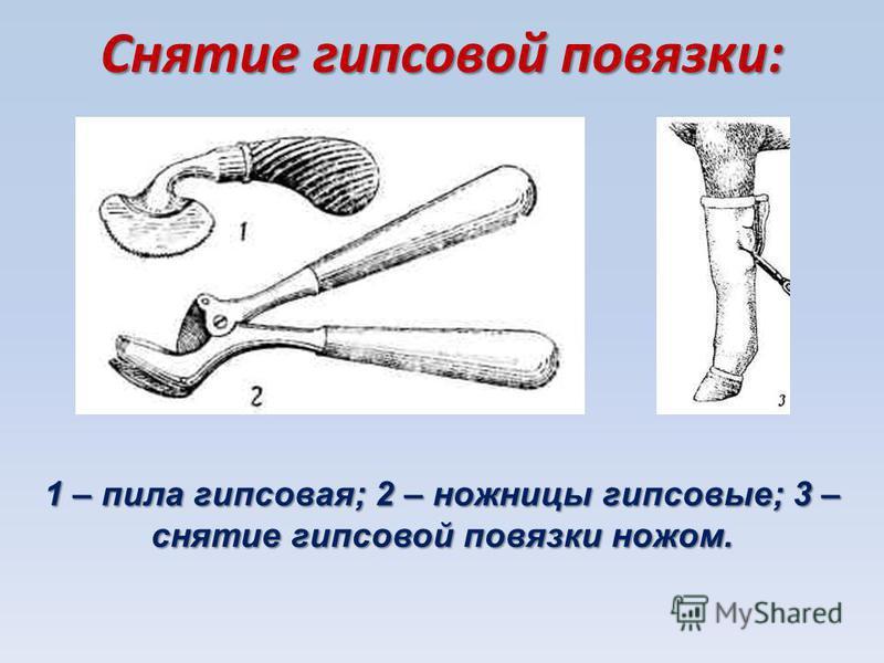Снятие гипсовой повязки: 1 – пила гипсовая; 2 – ножницы гипсовые; 3 – снятие гипсовой повязки ножом.
