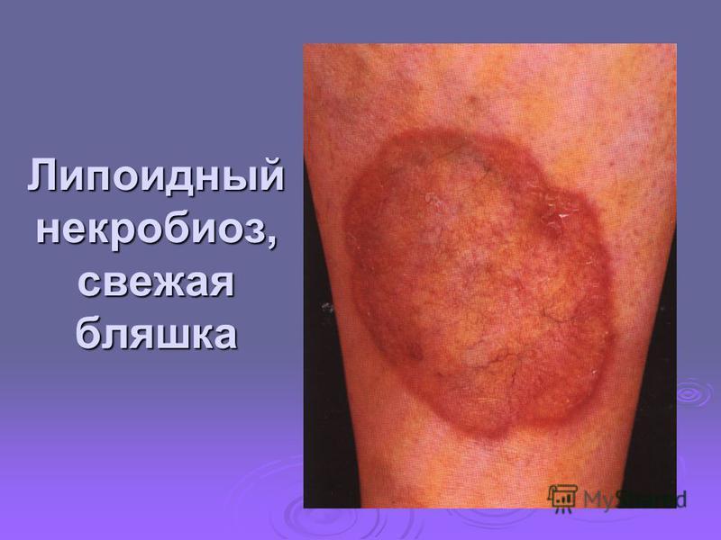 Липоидный некробиоз, свежая бляшка