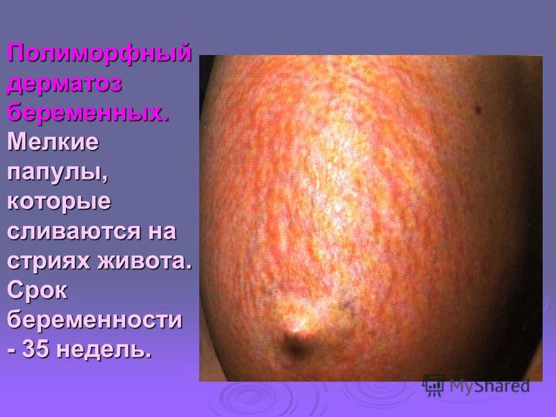 Полиморфный дерматоз беременных. Мелкие папулы, которые сливаются на стриях живота. Срок беременности - 35 недель.