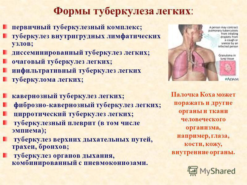 Формы туберкулеза легких: первичный туберкулезный комплекс; туберкулез внутригрудных лимфатических узлов; диссеминированный туберкулез легких; очаговый туберкулез легких; инфильтративный туберкулез легких туберкулома легких; кавернозный туберкулез ле
