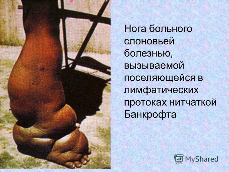 Нога больного слоновьей болезнью, вызываемой поселяющейся в лимфатических протоках нитчаткой Банкрофта