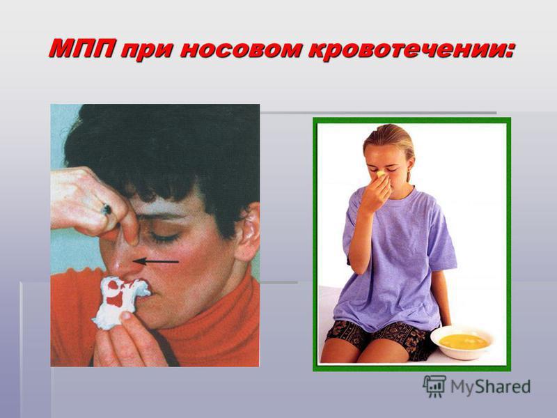 МПП при носовом кровотечении: