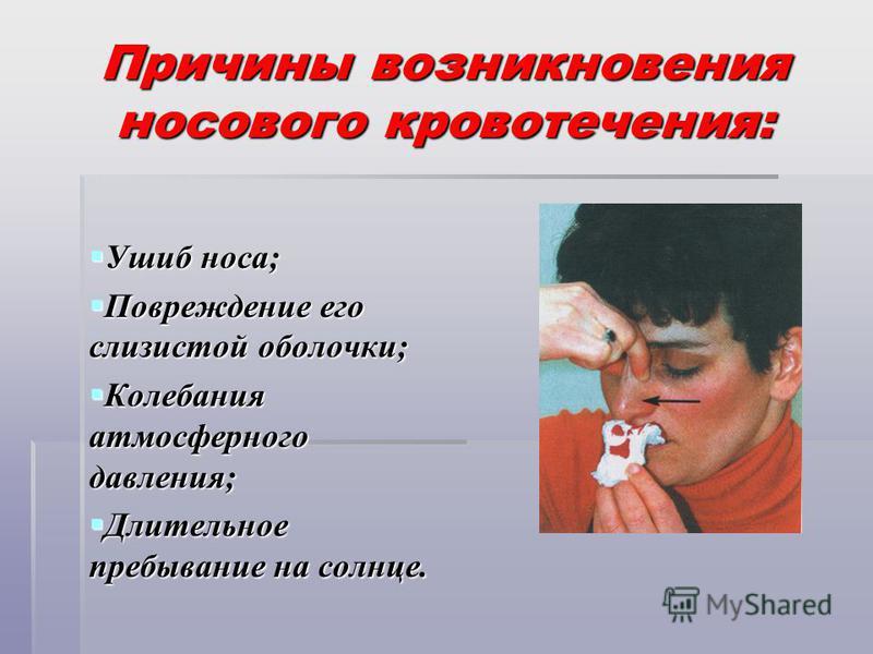 Причины возникновения носового кровотечения: Ушиб носа; Ушиб носа; Повреждение его слизистой оболочки; Повреждение его слизистой оболочки; Колебания атмосферного давления; Колебания атмосферного давления; Длительное пребывание на солнце. Длительное п