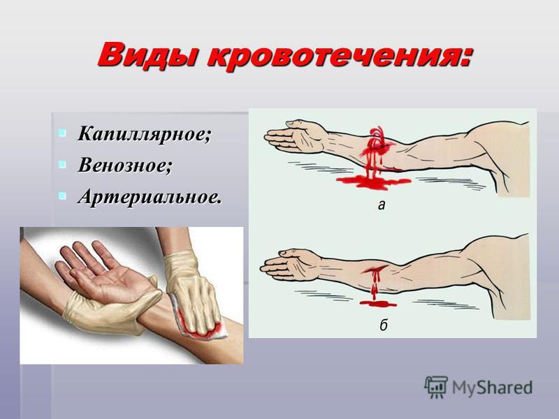 Виды кровотечения: Капиллярное; Капиллярное; Венозное; Венозное; Артериальное. Артериальное.