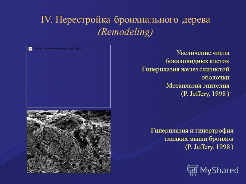 Гиперплазия и гипертрофия гладких мышц бронхов (P. Jeffery, 1998 ) Увеличение числа бокаловидных клеток Гиперплазия желез слизистой оболочки Метаплазия эпителия (P. Jeffery, 1998 ) IV. Перестройка бронхиального дерева (Remodeling)