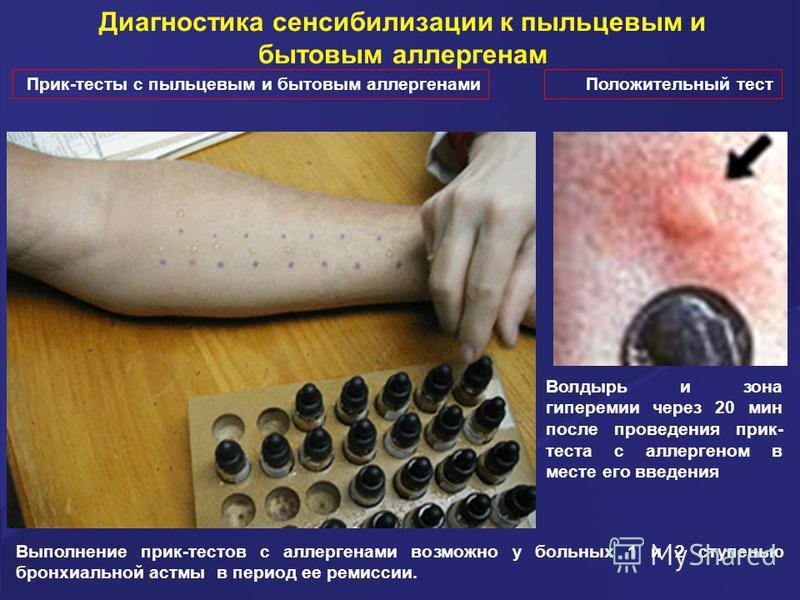 Диагностика сенсибилизации к пыльцевым и бытовым аллергенам Прик-тесты с пыльцевым и бытовым аллергенами Волдырь и зона гиперемии через 20 мин после проведения прик- теста с аллергеном в месте его введения Положительный тест Выполнение прик-тестов с