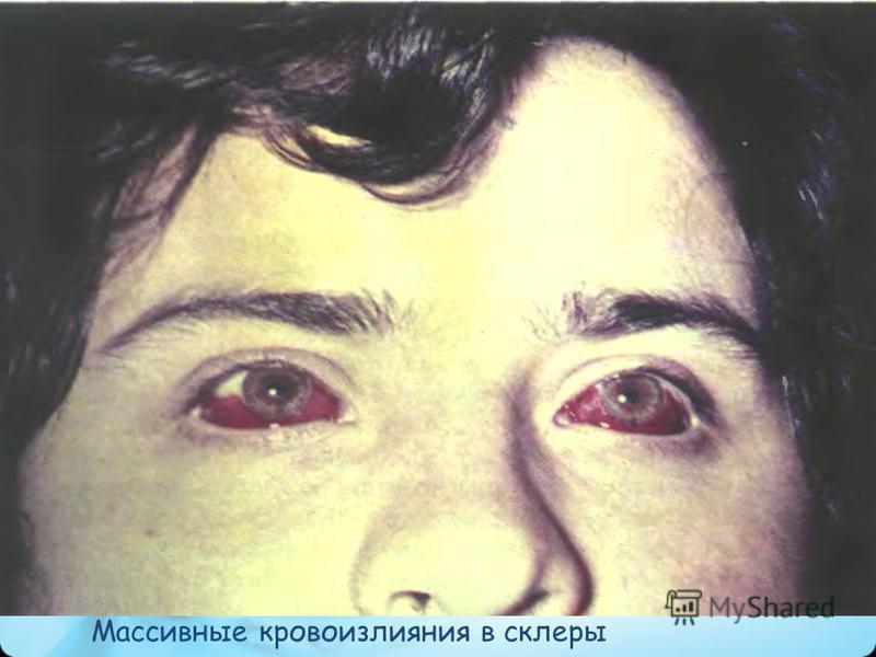 Массивные кровоизлияния в склеры