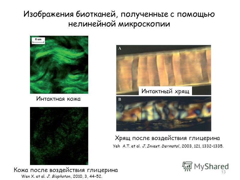 Изображения биотканей, полученные с помощью нелинейной микроскопии 13 Интактный хрящ Хрящ после воздействия глицерина Yeh A.T. et al. J. Invest. Dermatol., 2003, 121, 1332-1335. Интактная кожа Кожа после воздействия глицерина Wen X. et al. J. Biophot