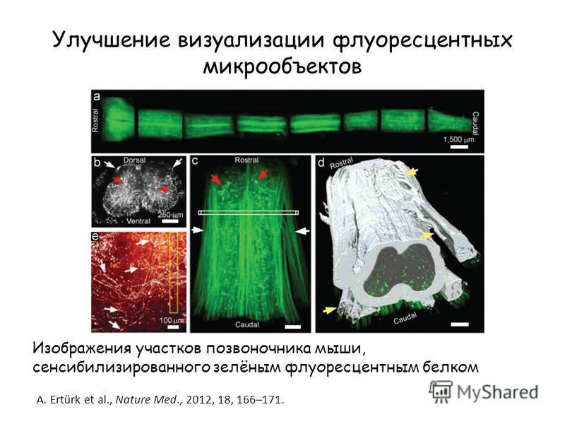 Улучшение визуализации флуоресцентных микрообъектов Изображения участков позвоночника мыши, сенсибилизированного зелёным флуоресцентным белком A. Ertürk et al., Nature Med., 2012, 18, 166–171.