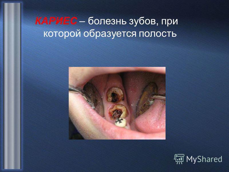 КАРИЕС – болезнь зубов, при которой образуется полость