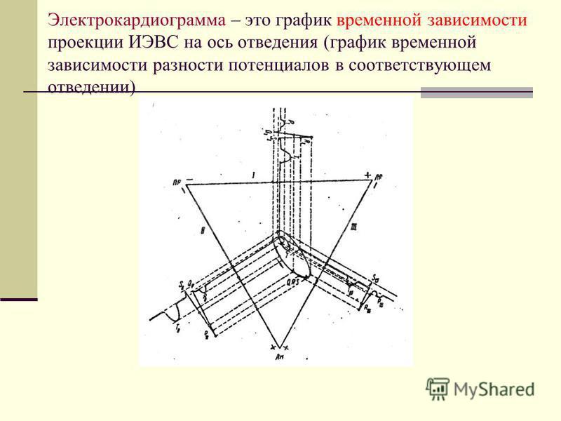 Электрокардиограмма – это график временной зависимости проекции ИЭВС на ось отведения (график временной зависимости разности потенциалов в соответствующем отведении)