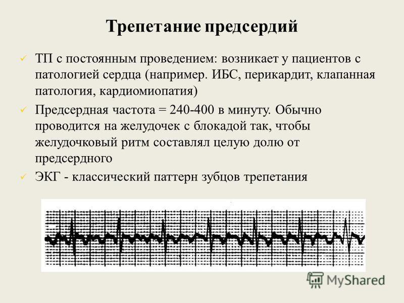Трепетание предсердий ТП с постоянным проведением: возникает у пациентов с патологией сердца (например. ИБС, перикардит, клапанная патология, кардиомиопатия) Предсердная частота = 240-400 в минуту. Обычно проводится на желудочек с блокадой так, чтобы