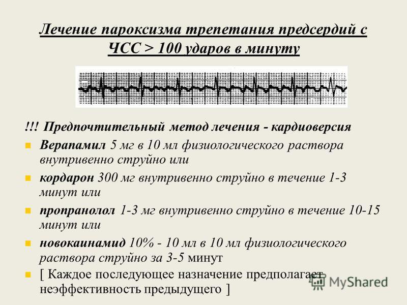 Лечение пароксизма трепетания предсердий с ЧСС > 100 ударов в минуту !!! Предпочтительный метод лечения - кардиоверсия Верапамил 5 мг в 10 мл физиологического раствора внутривенно струйно или кордарон 300 мг внутривенно струйно в течение 1-3 минут ил