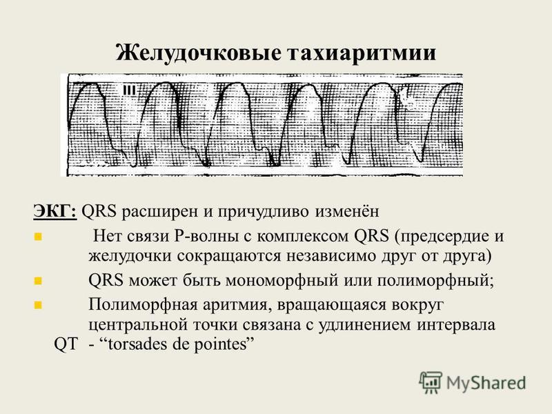Желудочковые тахиаритмии ЭКГ: QRS расширен и причудливо изменён Нет связи Р-волны с комплексом QRS (предсердие и желудочки сокращаются независимо друг от друга) QRS может быть мономорфный или полиморфный; Полиморфная аритмия, вращающаяся вокруг центр