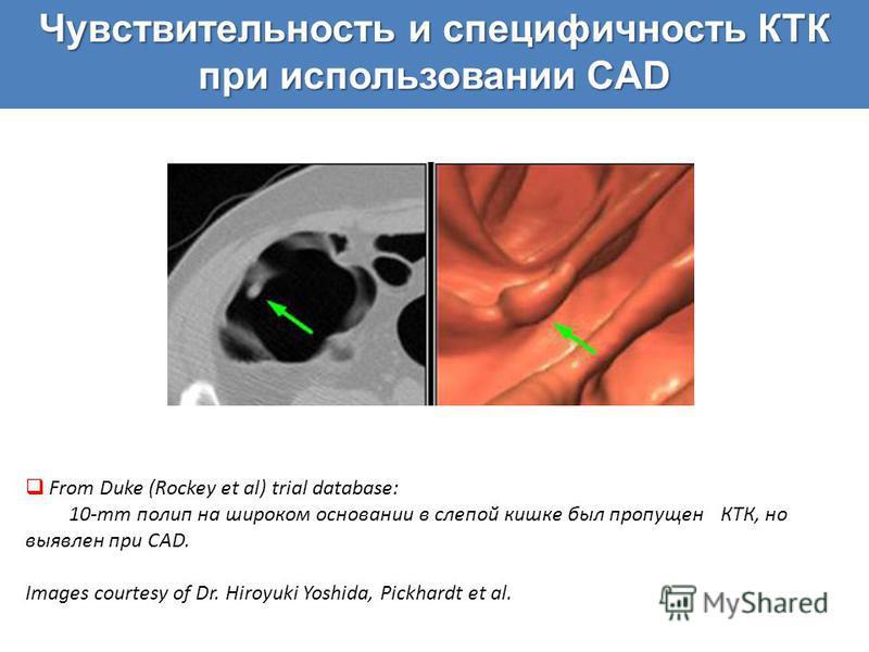 From Duke (Rockey et al) trial database: 10-mm полип на широком основании в слепой кишке был пропущен КТК, но выявлен при CAD. Images courtesy of Dr. Hiroyuki Yoshida, Pickhardt et al.
