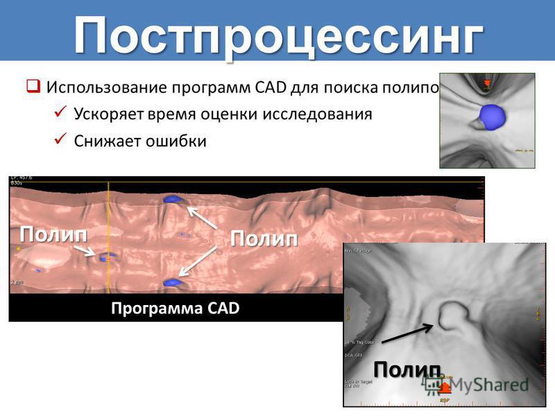 На животе Программа САD Полип Полип Постпроцессинг Использование программ CAD для поиска полипов Ускоряет время оценки исследования Снижает ошибки