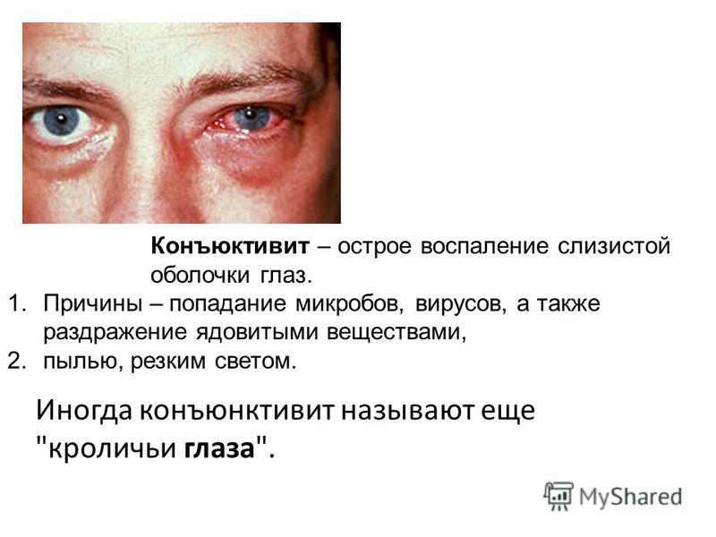 Конъюктивит – острое воспаление слизистой оболочки глаз. 1. Причины – попадание микробов, вирусов, а также раздражение ядовитыми веществами, 2.пылью, резким светом. Иногда конъюнктивит называют еще кроличьи глаза.