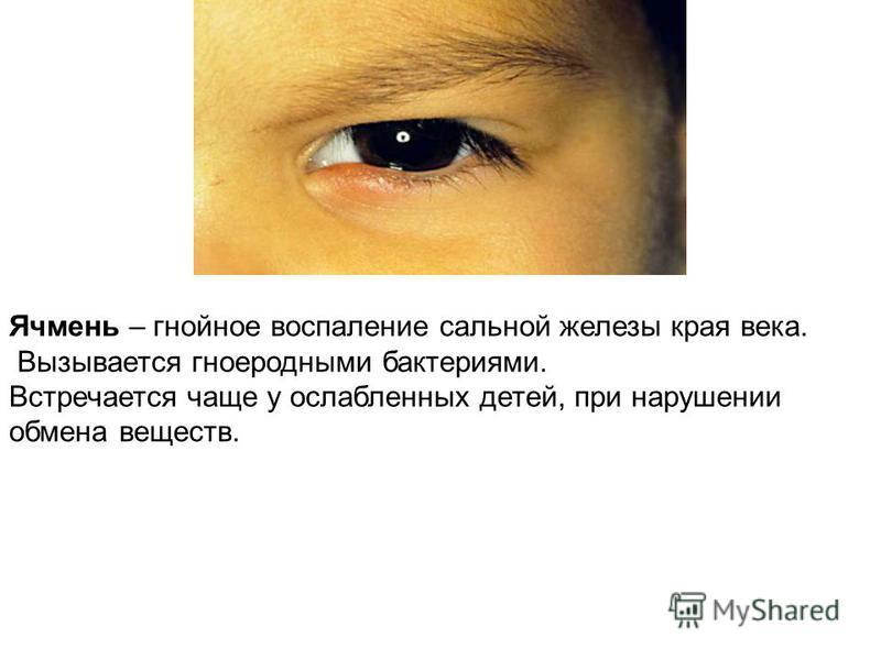 Ячмень – гнойное воспаление сальной железы края века. Вызывается гноеродными бактериями. Встречается чаще у ослабленных детей, при нарушении обмена веществ.