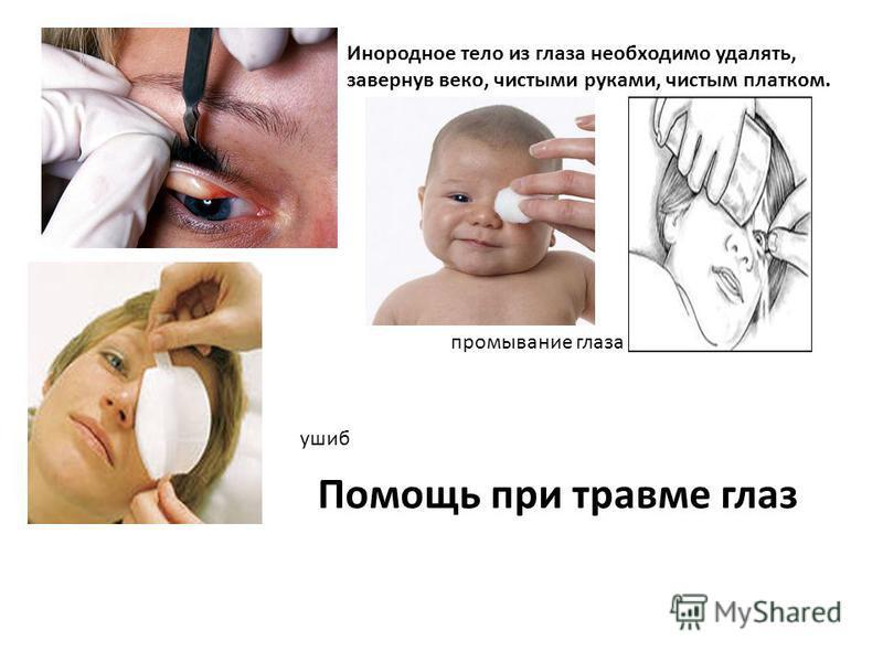 Инородное тело из глаза необходимо удалять, завернув веко, чистыми руками, чистым платком. ушиб промывание глаза Помощь при травме глаз
