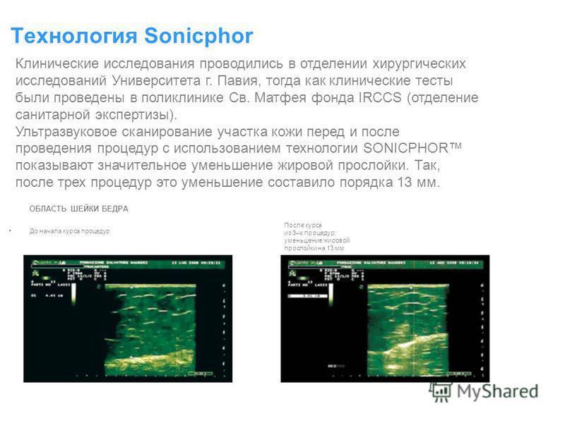 До начала курса процедур Технология Sonicphor Клинические исследования проводились в отделении хирургических исследований Университета г. Павия, тогда как клинические тесты были проведены в поликлинике Св. Матфея фонда IRCCS (отделение санитарной экс