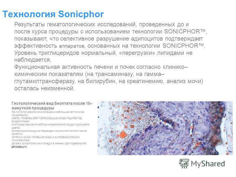 Технология Sonicphor Результаты гематологических исследований, проведенных до и после курса процедуры с использованием технологии SONICPHOR, показывают, что селективное разрушение адипоцитов подтверждает эффективность аппаратов, основанных на техноло