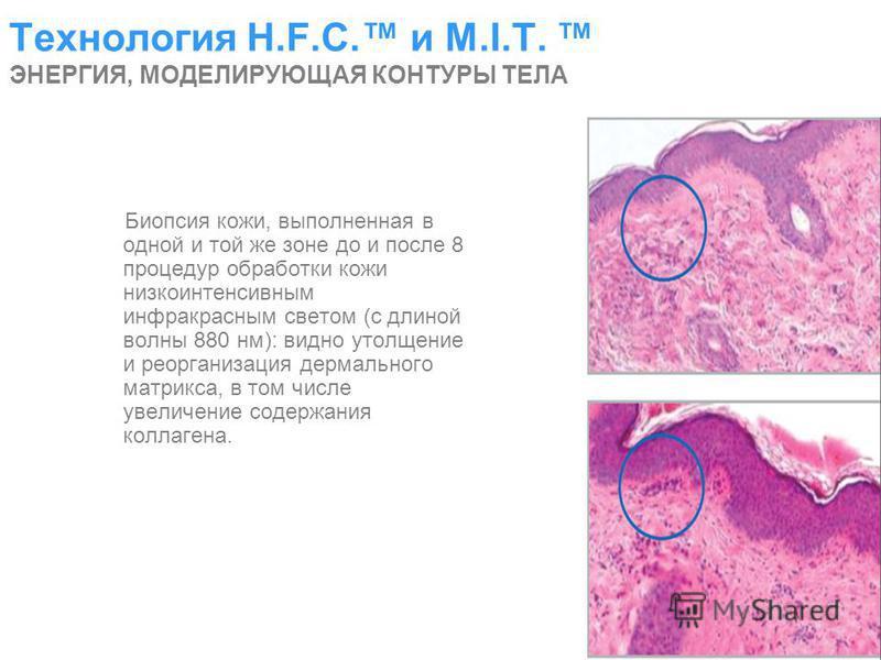 Технология H.F.C. и M.I.T. ЭНЕРГИЯ, МОДЕЛИРУЮЩАЯ КОНТУРЫ ТЕЛА Биопсия кожи, выполненная в одной и той же зоне до и после 8 процедур обработки кожи низкоинтенсивным инфракрасным светом (с длиной волны 880 нм): видно утолщение и реорганизация дермально