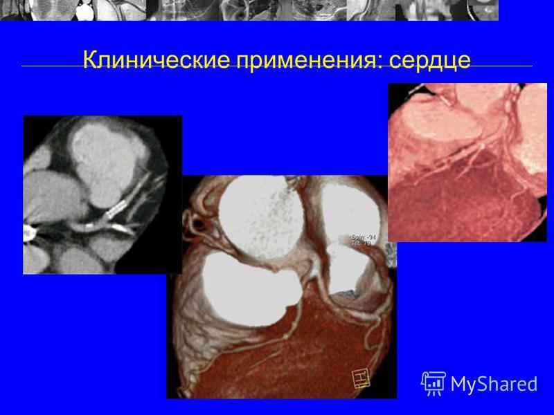 Клинические применения: сердце