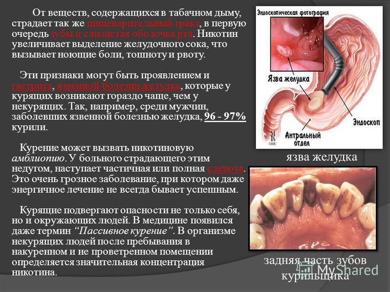 От веществ, содержащихся в табачном дыму, страдает так же пищеварительный тракт, в первую очередь зубы и слизистая оболочка рта. Никотин увеличивает выделение желудочного сока, что вызывает ноющие боли, тошноту и рвоту. Эти признаки могут быть проявл