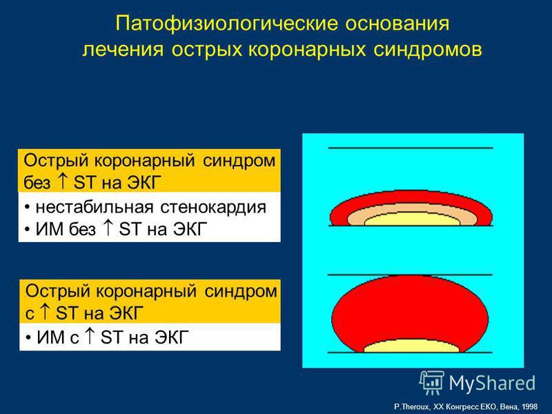 P.Theroux, XX Конгресс ЕКО, Вена, 1998 Острый коронарный синдром без ST на ЭКГ Острый коронарный синдром c ST на ЭКГ Патофизиологические основания лечения острых коронарных синдромов нестабильная стенокардия ИМ без ST на ЭКГ ИМ с ST на ЭКГ