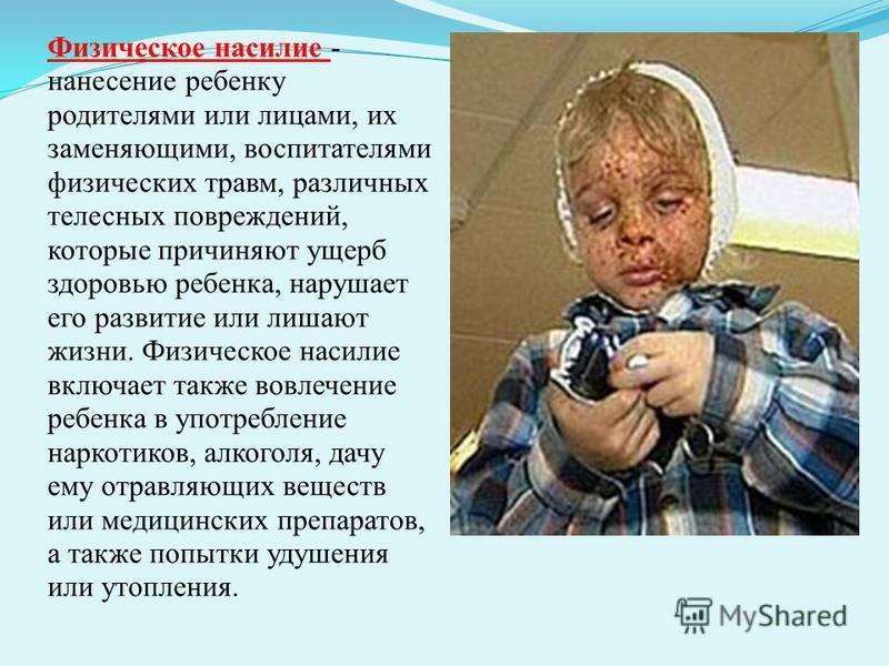 Физическое насилие - нанесение ребенку родителями или лицами, их заменяющими, воспитателями физических травм, различных телесных повреждений, которые причиняют ущерб здоровью ребенка, нарушает его развитие или лишают жизни. Физическое насилие включае