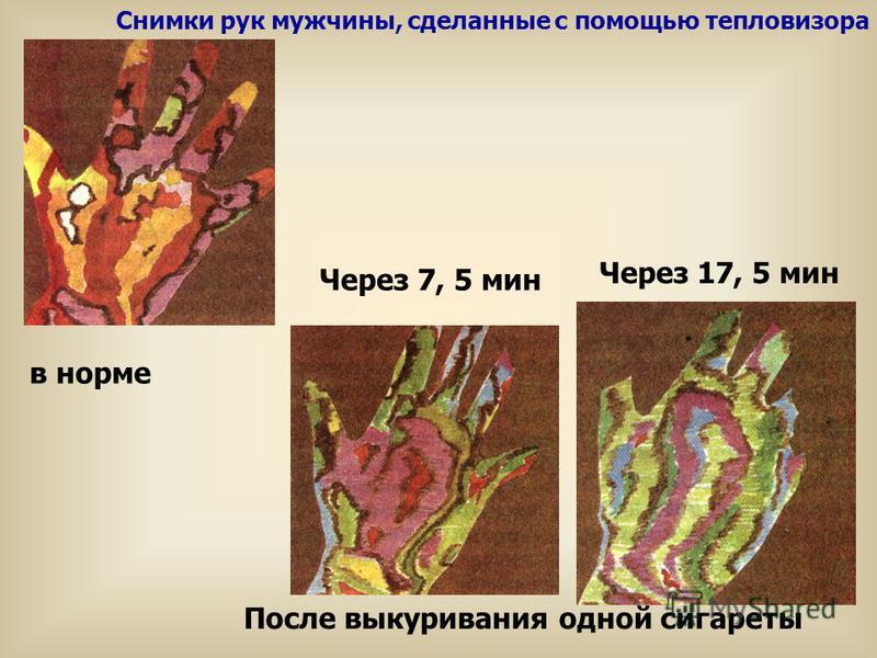 Снимки рук мужчины, сделанные с помощью тепловизора в норме Через 17, 5 мин Через 7, 5 мин После выкуривания одной сигареты