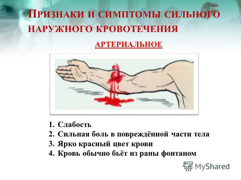 П РИЗНАКИ И СИМПТОМЫ СИЛЬНОГО НАРУЖНОГО КРОВОТЕЧЕНИЯ АРТЕРИАЛЬНОЕ 1. Слабость 2. Сильная боль в повреждённой части тела 3. Ярко красный цвет крови 4. Кровь обычно бьёт из раны фонтаном