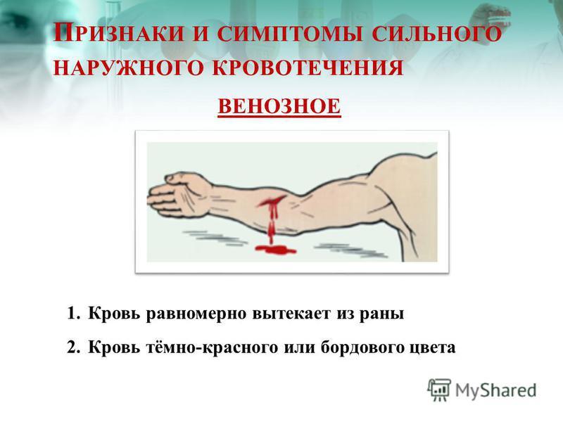 П РИЗНАКИ И СИМПТОМЫ СИЛЬНОГО НАРУЖНОГО КРОВОТЕЧЕНИЯ ВЕНОЗНОЕ 1. Кровь равномерно вытекает из раны 2. Кровь тёмно-красного или бордового цвета