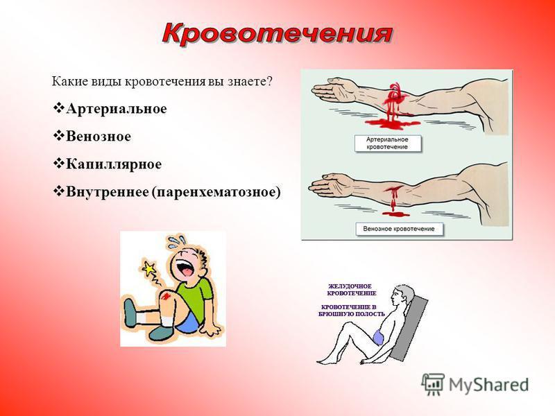 Какие виды кровотечения вы знаете? Артериальное Венозное Капиллярное Внутреннее (паренхиматозное)
