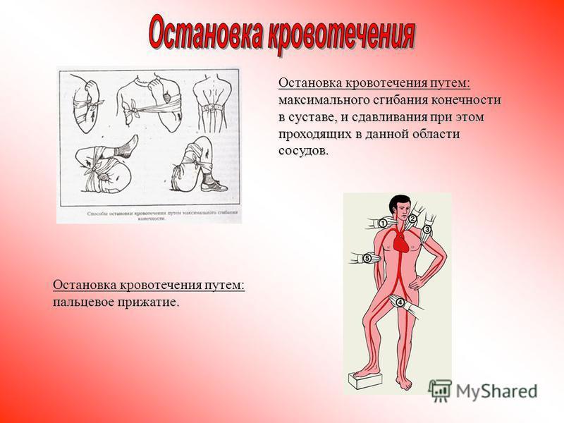 Остановка кровотечения путем: максимального сгибания конечности в суставе, и сдавливания при этом проходящих в данной области сосудов. Остановка кровотечения путем: пальцевое прижатие.