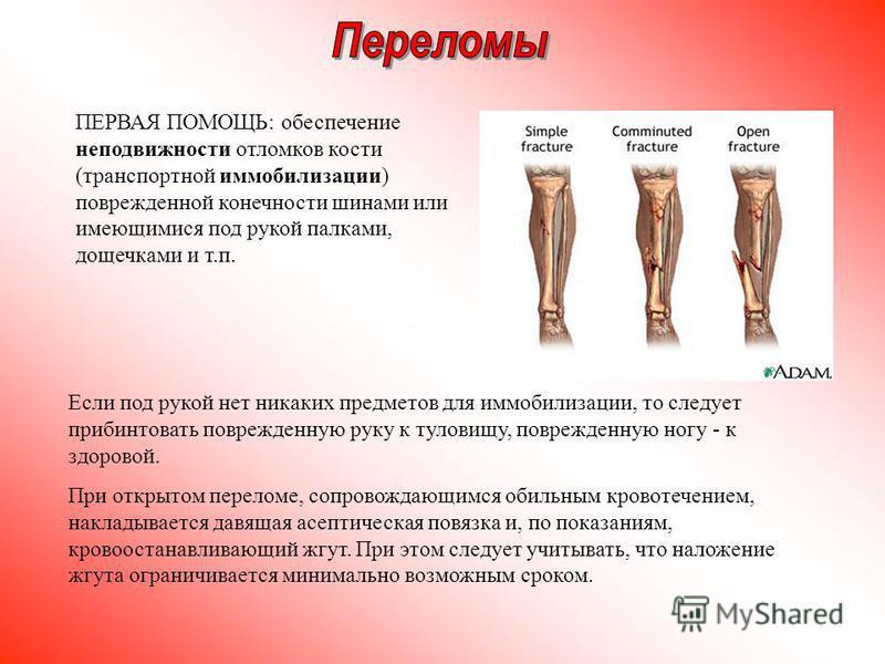 Если под рукой нет никаких предметов для иммобилизации, то следует прибинтовать поврежденную руку к туловищу, поврежденную ногу - к здоровой. При открытом переломе, сопровождающимся обильным кровотечением, накладывается давящая асептическая повязка и