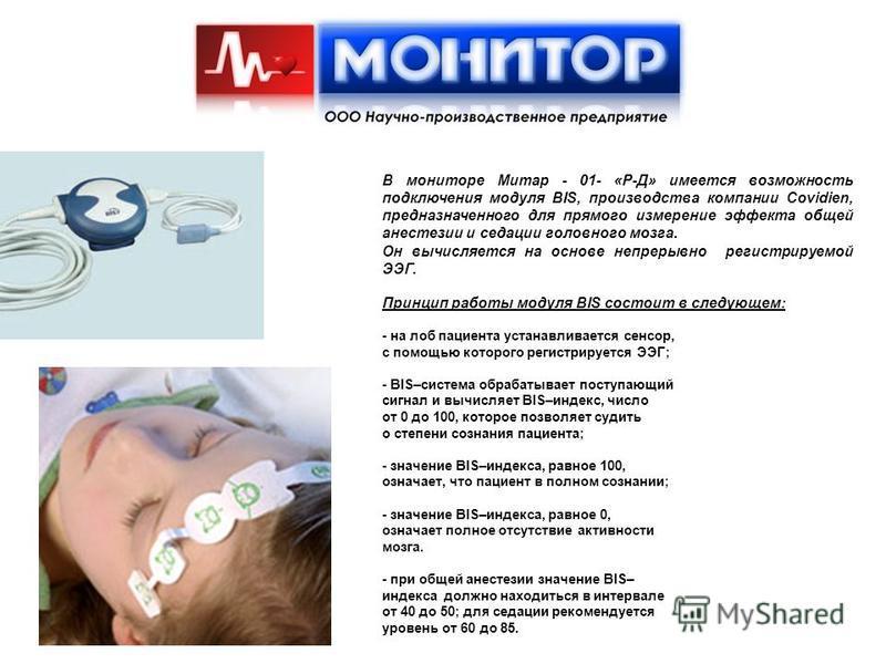 В мониторе Митар - 01- «Р-Д» имеется возможность подключения модуля BIS, производства компании Covidien, предназначенного для прямого измерение эффекта общей анестезии и седации головного мозга. Он вычисляется на основе непрерывно регистрируемой ЭЭГ.