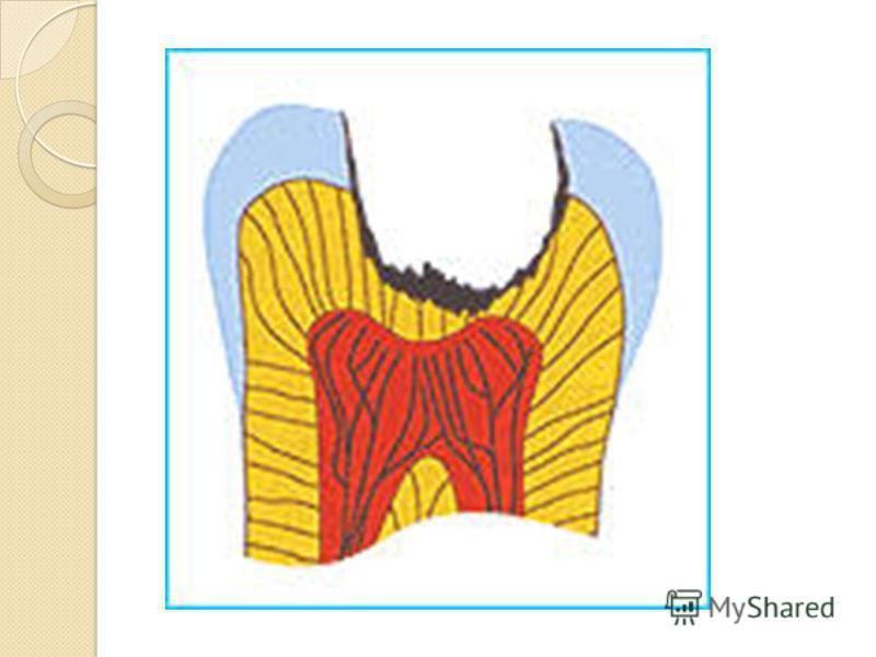 Глубокий кариес (Caries profunda). При исследовании шлифа зуба с глубокой кариозной полостью в световом микроскопе выявляются, как и при среднем кариесе, три зоны: 1-я – распада и деминерализации; 2-я – прозрачного и интактного дентина; 3-я – замести