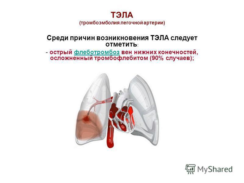 ТЭЛА (тромбоэмболия легочной артерии) Среди причин возникновения ТЭЛА следует отметить : - острый флеботромбоз вен нижних конечностей, осложненный тромбофлебитом (90% случаев);флеботромбоз