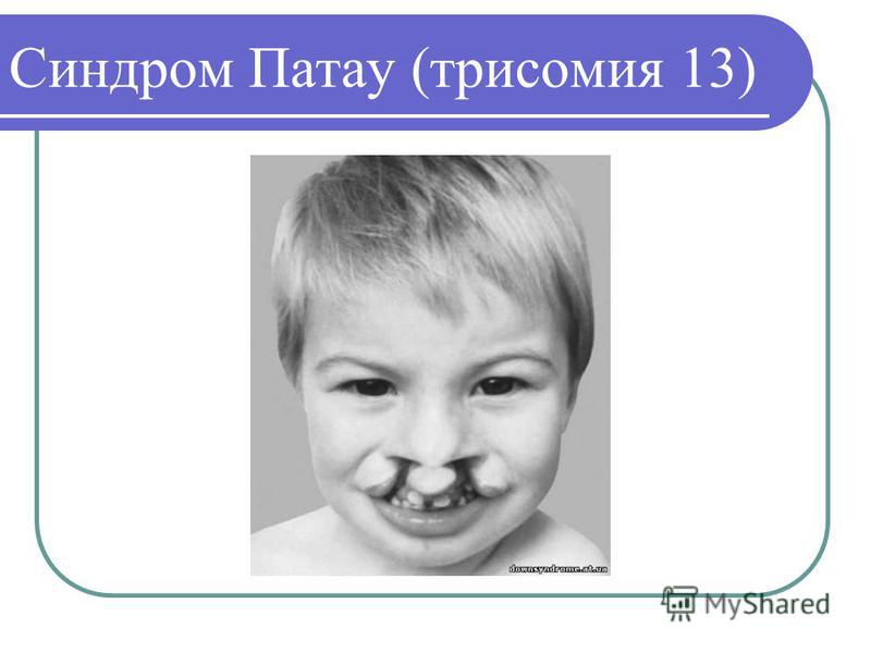 Синдром Патау (трисомия 13)