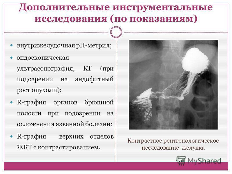 Дополнительные инструментальные исследования (по показаниям) внутрижелудочная рН-метрия; эндоскопическая ультрасонография, КТ (при подозрении на эндофитный рост опухоли); R-графия органов брюшной полости при подозрении на осложнения язвенной болезни;