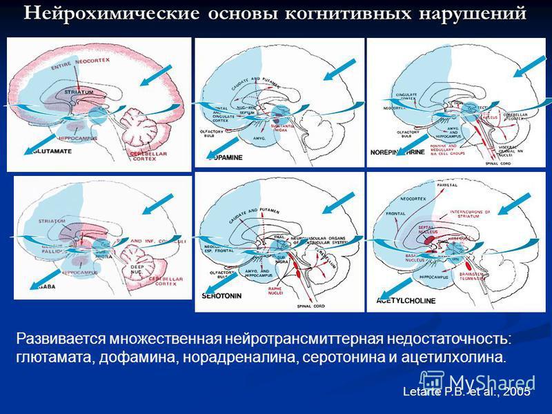Letarte P.B. et al., 2005 Развивается множественная нейротрансмиттерная недостаточность: глутамата, дофамина, норадреналина, серотонина и ацетилхолина. Нейрохимические основы когнитивных нарушений
