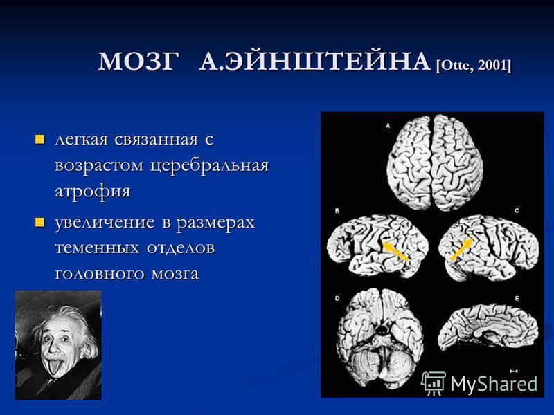МОЗГ А.ЭЙНШТЕЙНА [Otte, 2001] легкая связанная с возрастом церебральная атрофия легкая связанная с возрастом церебральная атрофия увеличение в размерах теменных отделов головного мозга увеличение в размерах теменных отделов головного мозга