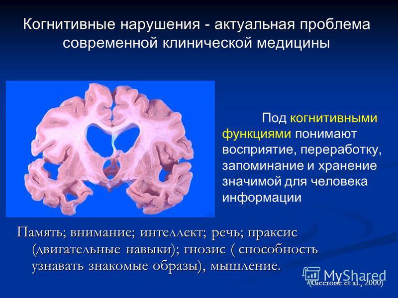 Когнитивные нарушения - актуальная проблема современной клинической медицины Под когнитивными функциями понимают восприятие, переработку, запоминание и хранение значимой для человека информации (Cicerone et al., 2000) Память; внимание; интеллект; реч