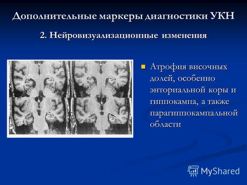 2. Нейровизуализационные изменения Атрофия височных долей, особенно энторинальной коры и гиппокампа, а также парагиппокампальной области Атрофия височных долей, особенно энторинальной коры и гиппокампа, а также парагиппокампальной области Дополнитель