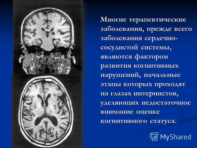 Многие терапевтические заболевания, прежде всего заболевания сердечно- сосудистой системы, являются фактором развития когнитивных нарушений, начальные этапы которых проходят на глазах интернистов, уделяющих недостаточное внимание оценке когнитивного