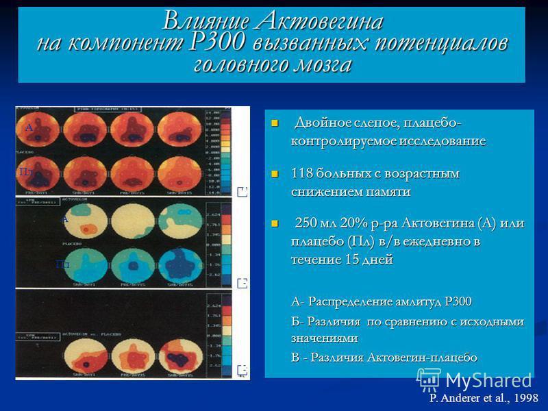 Влияние Актовегина на компонент Р300 вызванных потенциалов головного мозга Двойное слепое, плацебо- контролируемое исследование 118 больных с возрастным снижением памяти 250 мл 20% р-ра Актовегина (А) или плацебо (Пл) в/в ежедневно в течение 15 дней